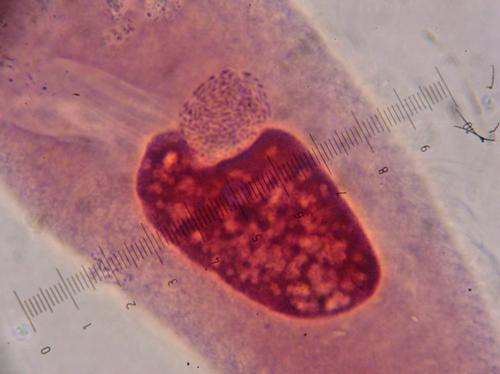 Paramecium 3 days post infection